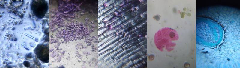 Some interesting patterns and designs from the natural world as seen from a Foldscope (Diatoms, animal tissue, onion cells and fern rhizome).
